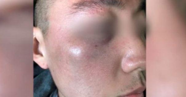 미국 캘리포니아주 로스앤젤레스 한인타운에서 무차별 폭행을 당한 한인 2세 데니 김 씨. / 사진=트위터 캡처