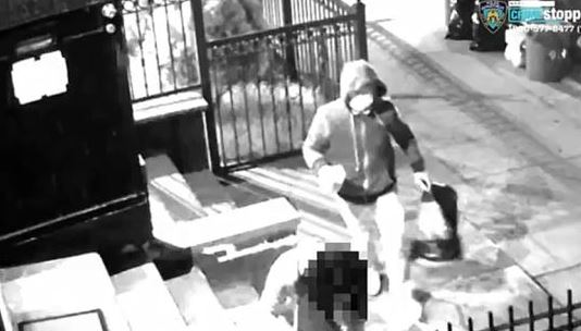 지난해 4월 뉴욕시 브루클린에 거주하는 동양인 여성이 신원 미상의 남성으로부터 염산 테러를 당해 큰 피해를 입었다. / 사진=뉴욕포스트 홈페이지 캡처