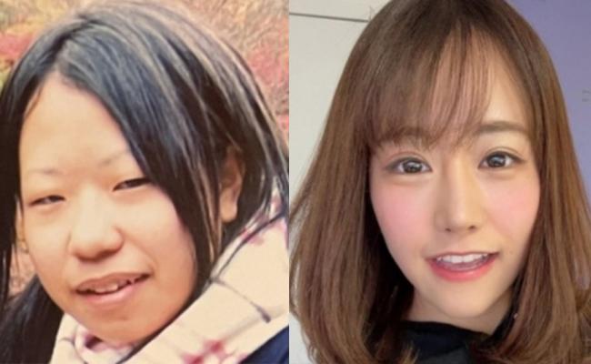 성형 전(왼쪽), 성형 후(오른쪽) A씨의 모습. 사진=미키시(みきしぃ) SNS 캡처.