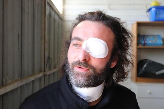 최근 며칠 너무 울어 염증이 생긴 눈에 안대를 착용하고 인터뷰에 응한 리카르도 체코벨리 신부. 사진=ANSA 통신.
