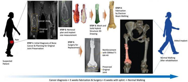 3D 프린팅 Ti-6Al-4V 임플란트(인공 뼈)를 이용한 골종양 치료 진행과정 연구그림.