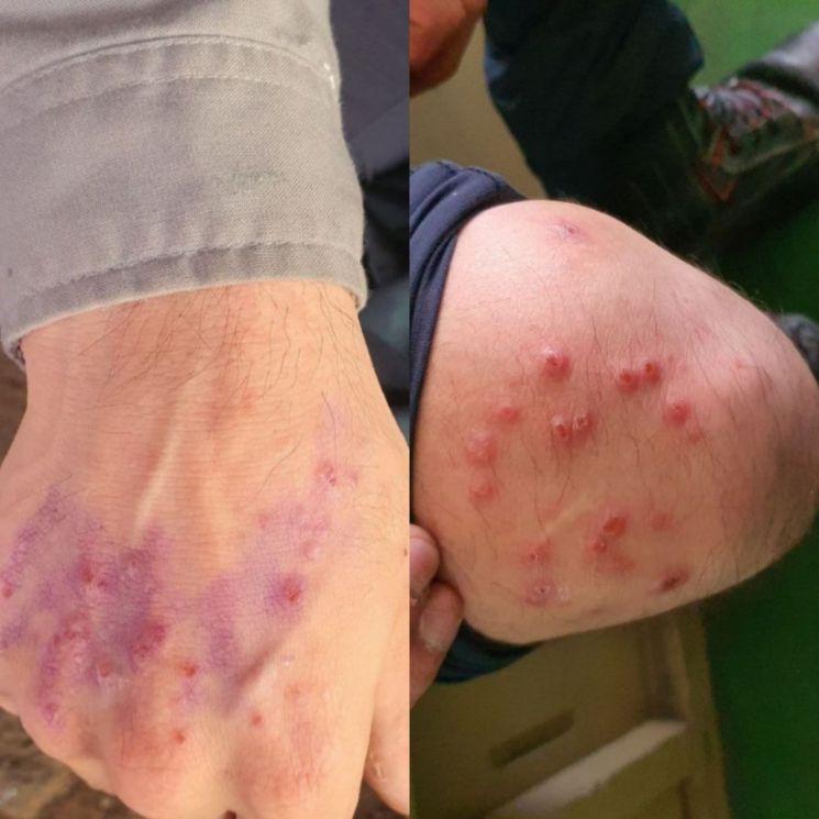한 조선소 근로자가 무용제 도료로 도장 작업을 한 뒤 피부질환에 시달리고 있다. [이미지출처=금속노조]