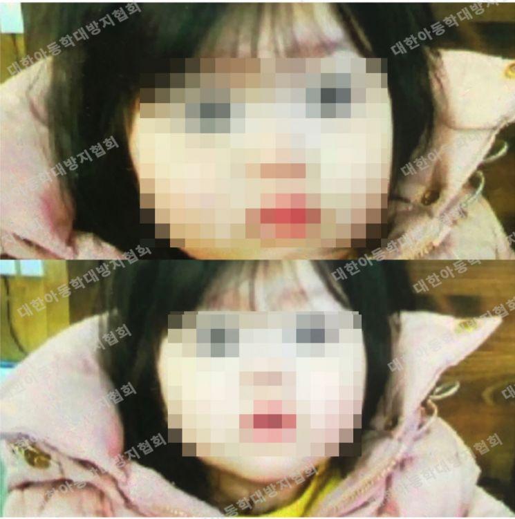 지난 3월 20대 친모와 계부의 학대를 받던 중 8세의 나이로 세상을 떠난 별이/ 사진제공=대한아동학대방지협회(대아협)