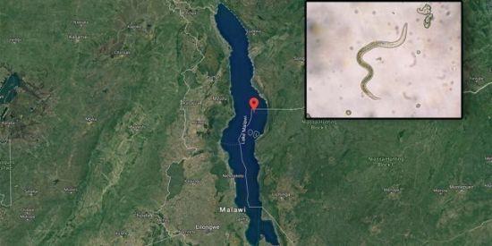 아프리카서 수영했다가 중요부위 통해 '기생충 감염된 英 남성'